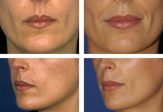 Cirugia De Los Labios Queiloplastia