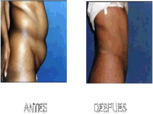 http://www.cirugiaesteticarossa.com/imagenes/abdominoplastia.jpg