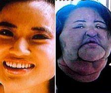 Adictas a la cirugía estética: Una mujer se inyecta aceite en la cara