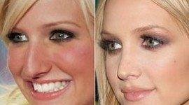 La cirugía estética de Ashlee Simpson