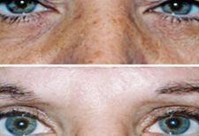 El antes y el después de la blefaroplastia en fotos