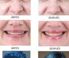 Botox: Fotos del antes y el después