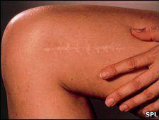 Evitar las cicatrices después de la operación