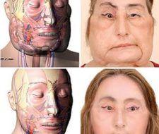 Se cumple un año del transplante de cara de Connie Culp