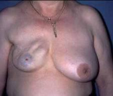 Riesgos de operarse los senos