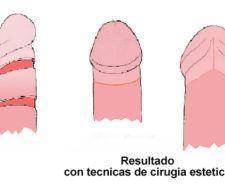 Operación de fimosis y frenillo con cirugía estética
