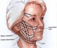Hilos tensores en los tratamientos faciales