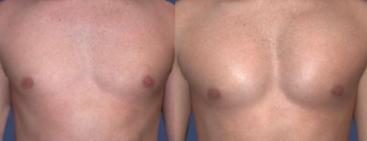 Implantes de pectorales