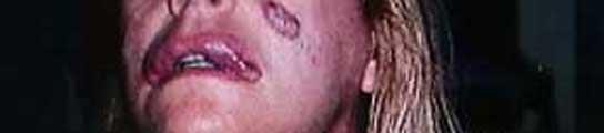 inyeccion-cirugia