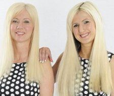 Una madre se opera para parecerse a su hija