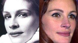 Operaciones de Julia Roberts