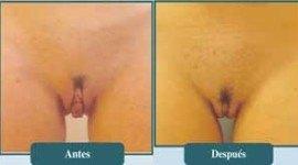 Labioplastia: cirugia de los labios vaginales