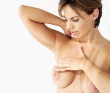 ¿Prótesis mamarias para levantar el pecho?