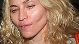 Operaciones de Madonna