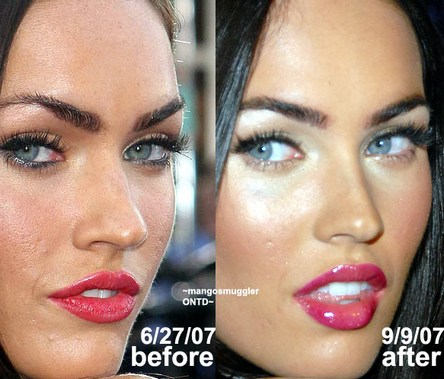 Megan Fox Before and After Celebrities Plastic Surgery