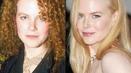 Operaciones de Nicole Kidman