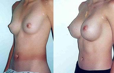 pechos operados1