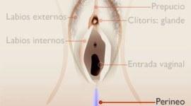 Perineoplastia