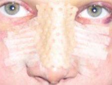 Postoperatorio Rinoplastia