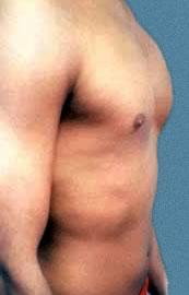 Prótesis de pectorales