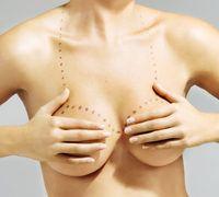 Reducir el pecho y las probabilidades de sufrir cáncer de mama