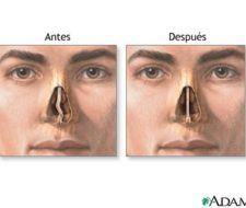 Septoplastia: operación para corregir la desviación del tabique nasal