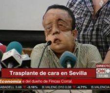 Aparición pública del paciente con el segundo trasplante de cara en España