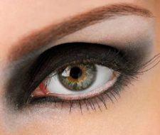 Cirugía de Ojos: Cantopexia