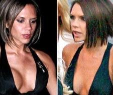 Victoria Beckham se vuelve a operar los pechos