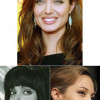 Operaciones de Angelina Jolie