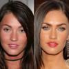 Operaciones de Megan Fox